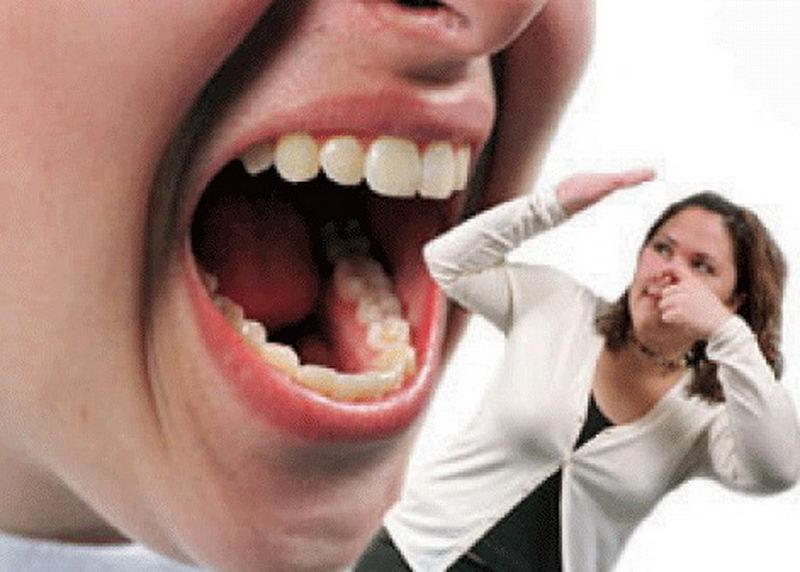 запах изо рта при тонзиллите у ребенка