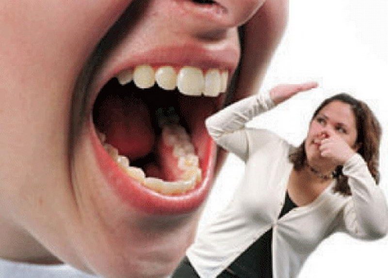 неприятный запах изо рта сахарном диабете